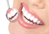Excel Family Dental - Care Following Orthodontics Retainers
