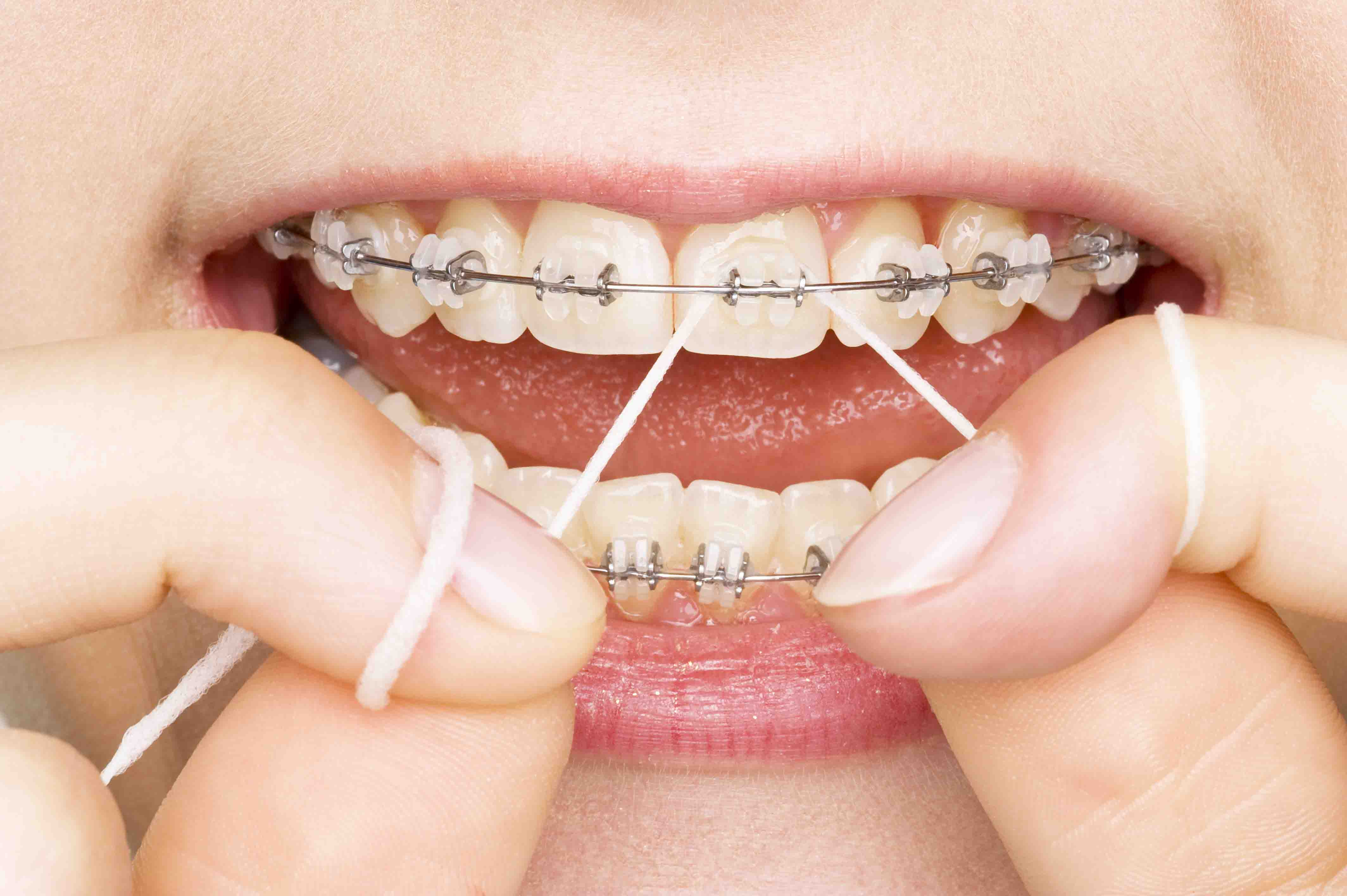 The Importance of Going to The Dentist
